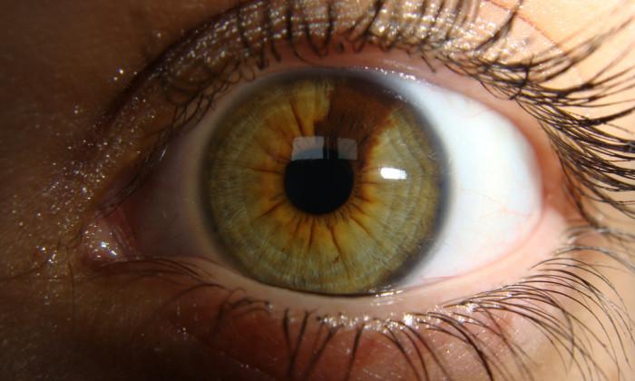PartialHeterochromia